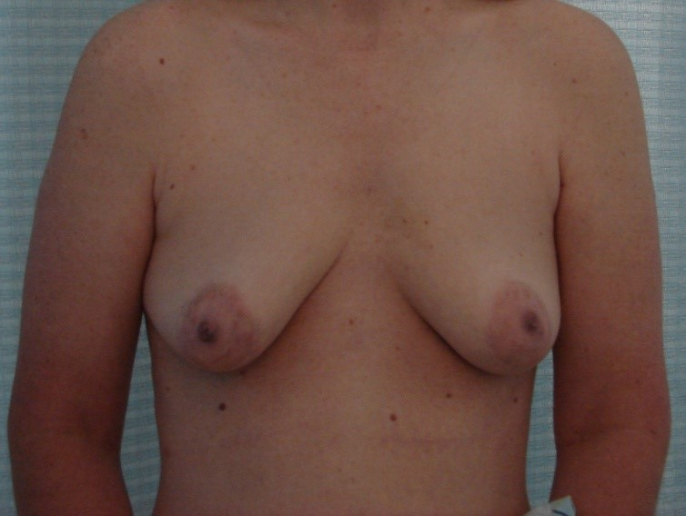 Breast-Augmentation-Before-And-After-Virginia-Beach-VA-Plastic-Surgeon-018-A
