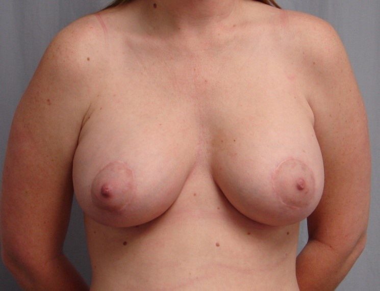 Breast-Augmentation-Before-And-After-Virginia-Beach-VA-Plastic-Surgeon-018-B
