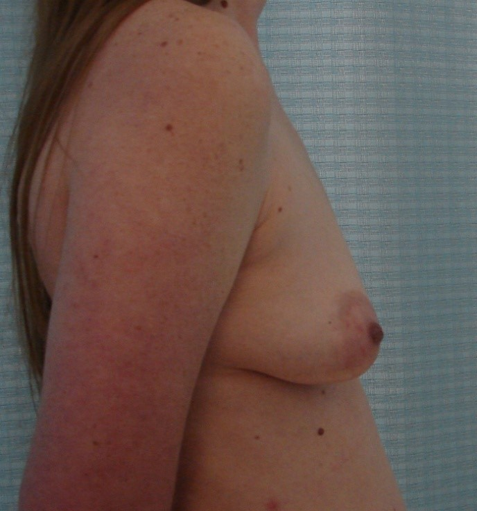 Breast-Augmentation-Before-And-After-Virginia-Beach-VA-Plastic-Surgeon-018-C
