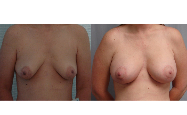 Breast-Augmentation-Before-And-After-Virginia-Beach-VA-Plastic-Surgeon-018-Cover