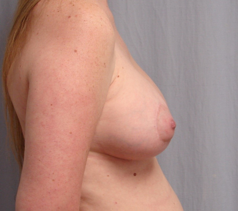 Breast-Augmentation-Before-And-After-Virginia-Beach-VA-Plastic-Surgeon-018-D