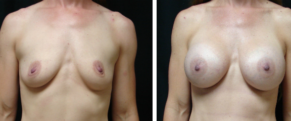Breast-Augmentation-Before-and-After-Virginia-Beach-Plastic-Surgeon-001-Cover
