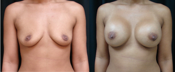 Breast-Augmentation-Before-and-After-Virginia-Beach-Plastic-Surgeon-002-Cover