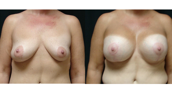 Breast-Augmentation-Body-Plastic-Surgery-Virginia-Beach-VA-006-Cover