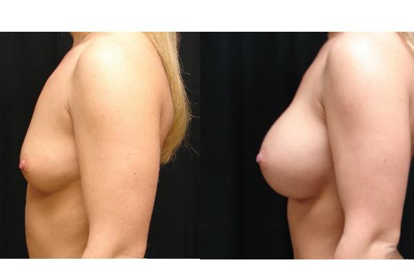 Breast-Augmentation-Body-Plastic-Surgery-Virginia-Beach-VA-007-Cover