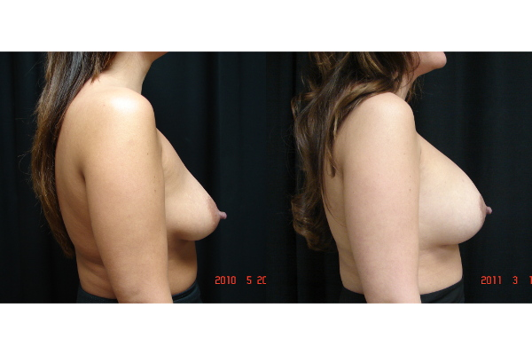 Breast-Augmentation-Mastopexy-before-and-after-2-102-JSJ