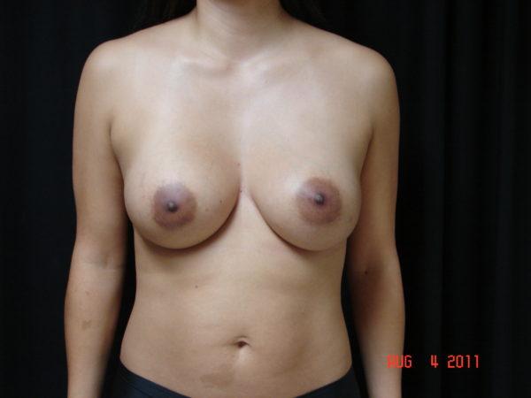 Breast-Augmentation-Post-Op-1-Virginia-Beach-Plastic-Surgeon-VA-101-JSA