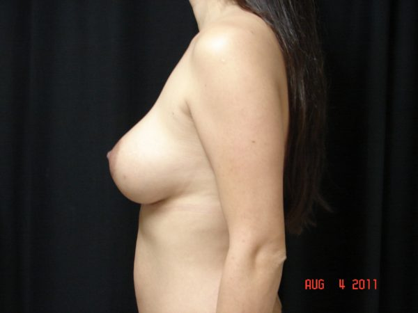 Breast-Augmentation-Post-Op-2-Virginia-Beach-Plastic-Surgeon-VA-101-JSA