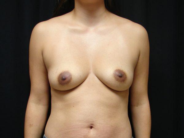 Breast-Augmentation-Pre-Op-1-Virginia-Beach-Plastic-Surgeon-VA-101-JSA