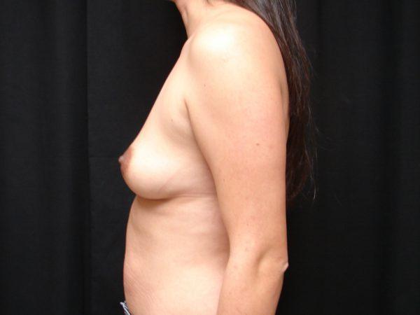 Breast-Augmentation-Pre-Op-2-Virginia-Beach-Plastic-Surgeon-VA-101-JSA