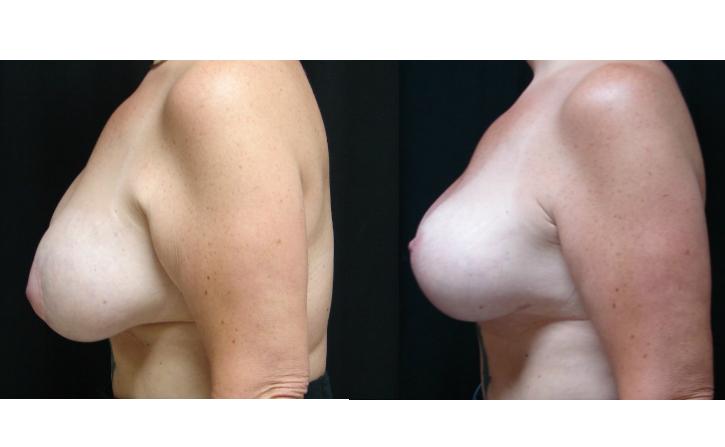 Breast-Augmentation-Virginia-Beach-VA-Plastic-Surgeon-019-Cover