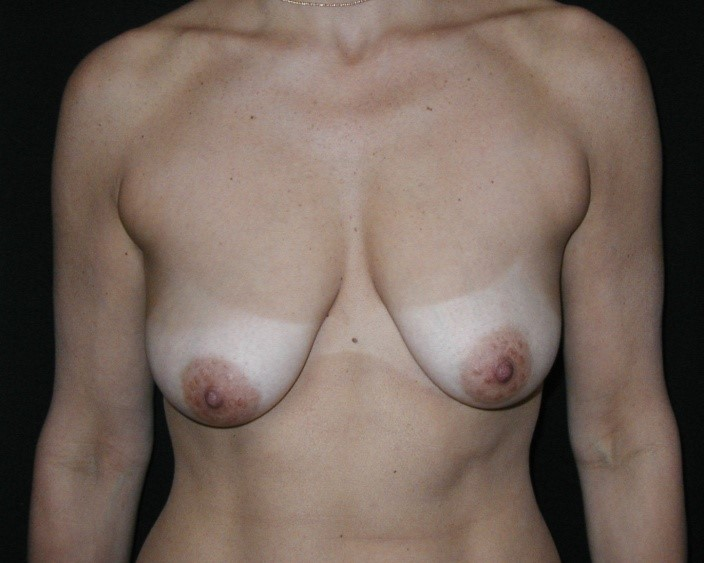 Breast-Augmentation-With-Mastopexy-Virginia-Beach-Plastic-Surgeon-016-A