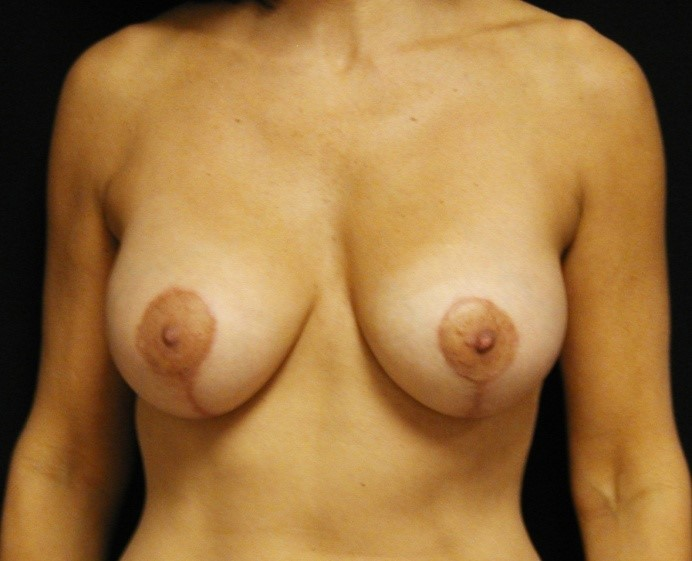 Breast-Augmentation-With-Mastopexy-Virginia-Beach-Plastic-Surgeon-016-B