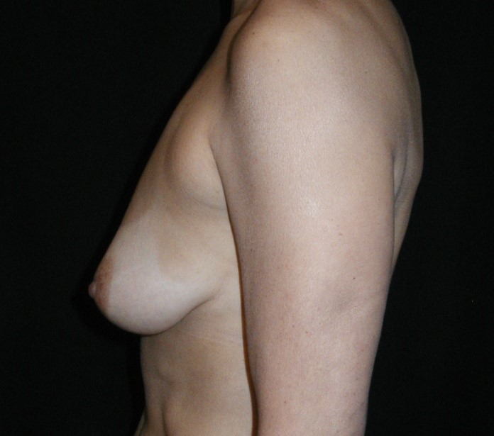 Breast-Augmentation-With-Mastopexy-Virginia-Beach-Plastic-Surgeon-016-C
