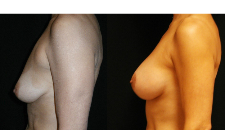Breast-Augmentation-With-Mastopexy-Virginia-Beach-Plastic-Surgeon-016-Cover