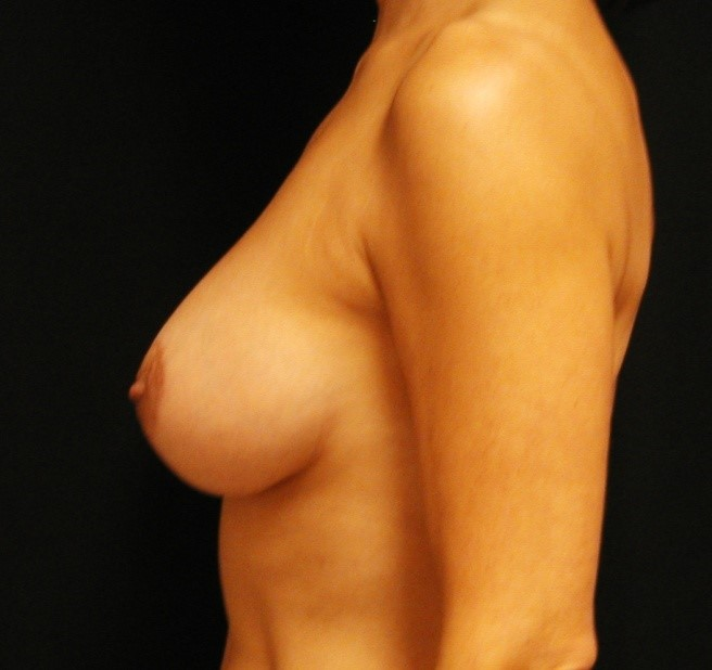 Breast-Augmentation-With-Mastopexy-Virginia-Beach-Plastic-Surgeon-016-D