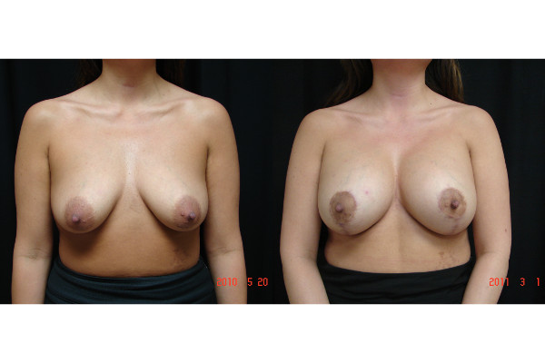 Breast-Augmentation-before-and-after-1-102-JSJ