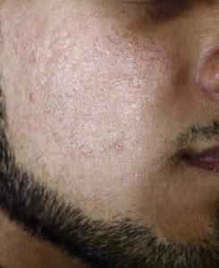 Post-Op CO2 Laser Skin   Resurfacing