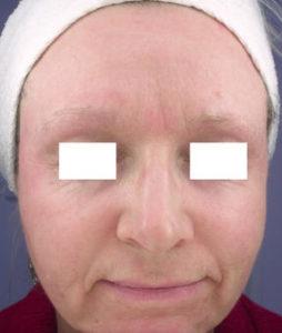 CO2-Post-Op-Woman-1-Virginia-Beach-Plastic-Surgery