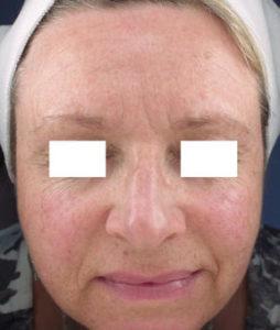 Pre-Op CO2 Laser Skin   Resurfacing