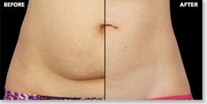 CoolSculpting-Before-After-Virginia-Beach-VA-Med-Spa