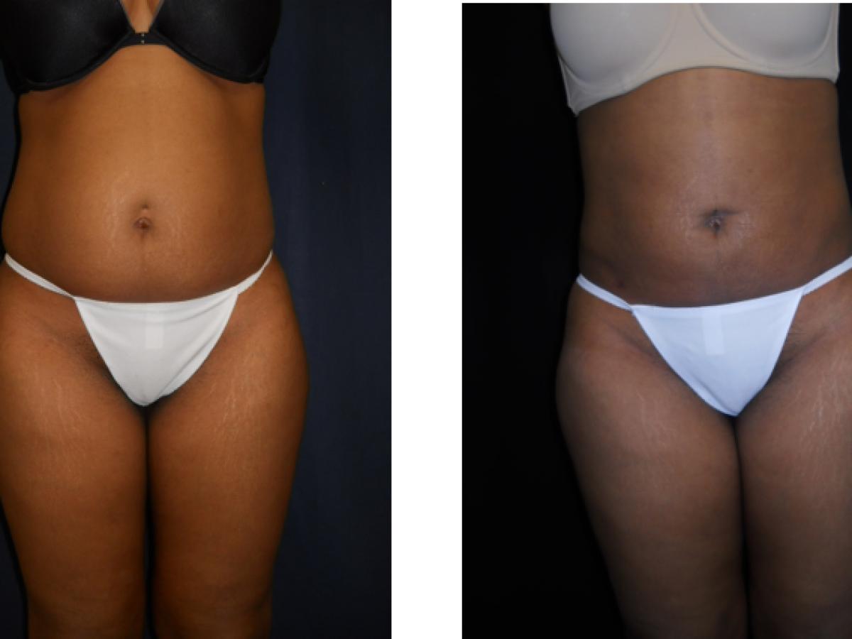 Upper Lower Abdomen Liposuction Associates In Plastic Surgery