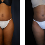 Upper & Lower Abdomen Liposuction