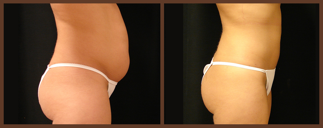 Abdominoplasty-Tummy-Tuck-Virginia-Beach-Plastic-Surgeon
