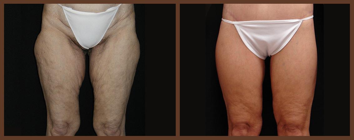 DrA_thighplasty_1-1