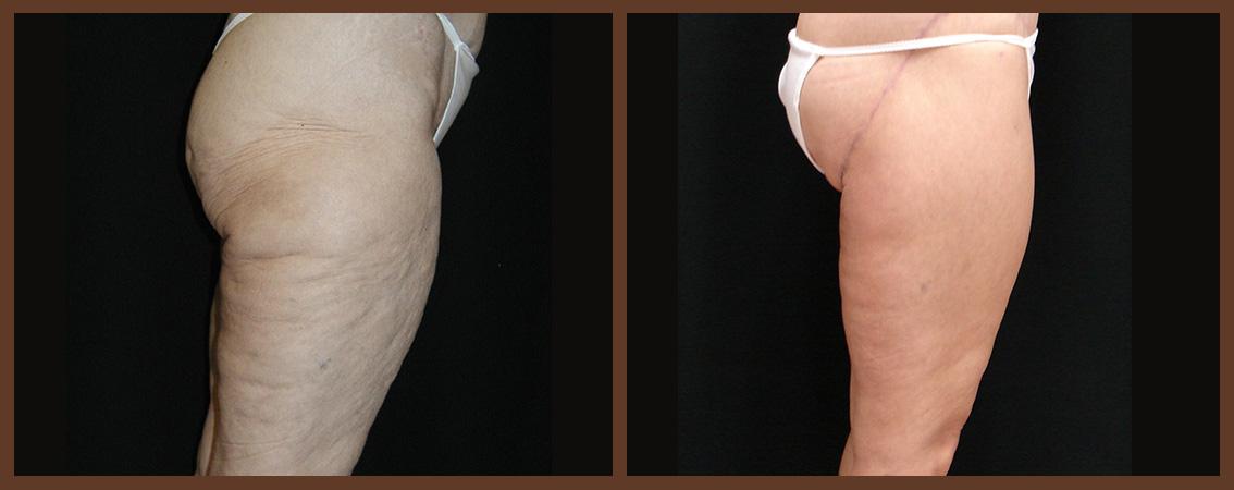 DrA_thighplasty_1-2