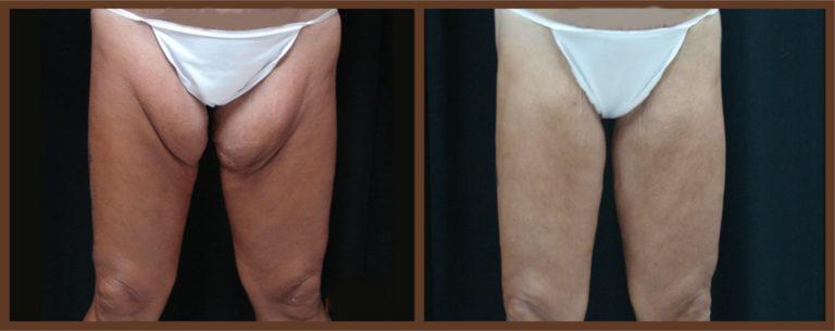 DrA_thighplasty_2-1a
