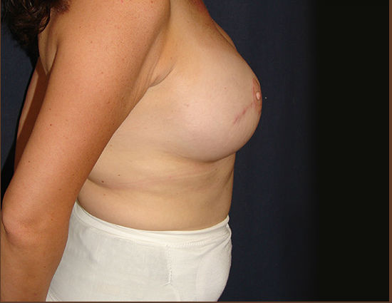 After-Breast Reconstruction
