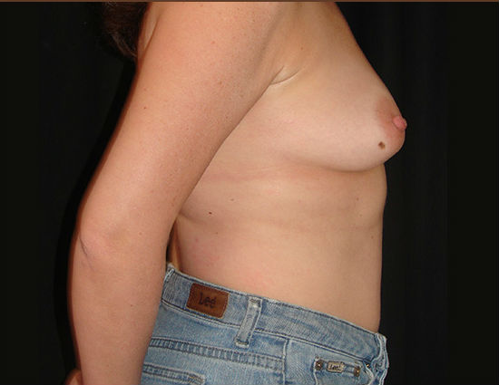 Before-Breast Reconstruction