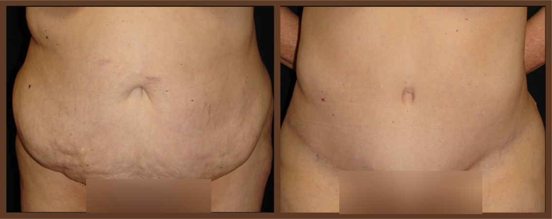 DrDenk-Abdominoplasty-Before-After-Virginia-Beach-Plastic-Surgeon