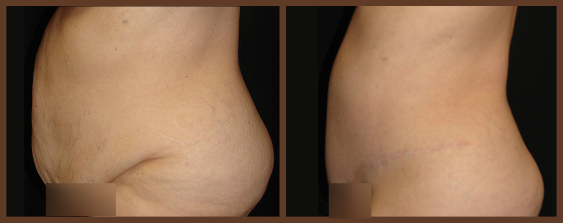 DrDenk-Abdominoplasty-Before-After-Virginia-Beach-Plastic-Surgeon-2