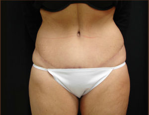 DrJ-abdominoplasty-virginia-beach-after-1-1