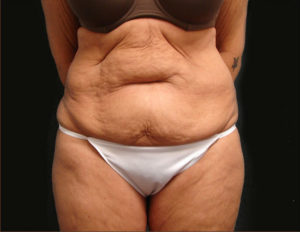 DrJ-abdominoplasty-virginia-beach-before-1-1