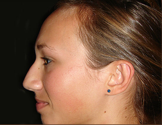 After-Dr Jacobs - Otoplasty - Side View