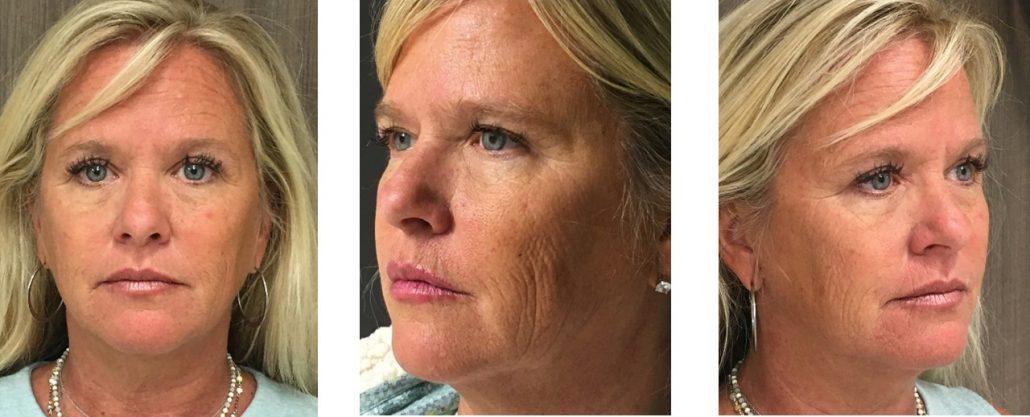 Final-1-CO2-Laser-Wrinkle-Reduction-Virginia-Beach-VA-Med-Spa-Before-Photos