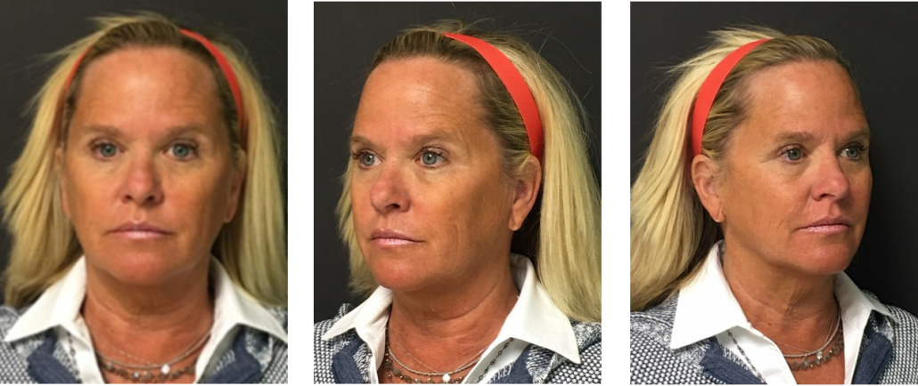Final-3-CO2-Laser-Wrinkle-Reduction-Virginia-Beach-VA-Med-Spa-Post-10-Months-Photos