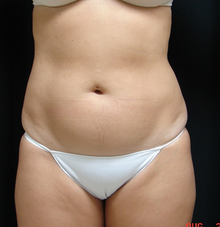 Liposuction-Body-Plastic-Surgery-Virginia-Beach-VA-004-A