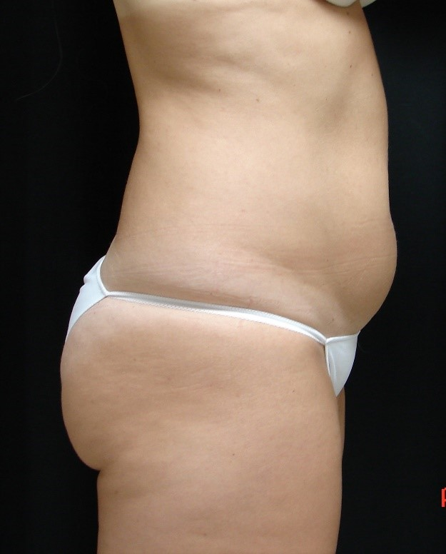 Liposuction-Body-Plastic-Surgery-Virginia-Beach-VA-004-B