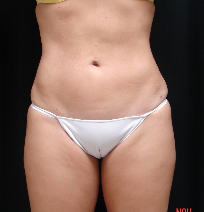 Liposuction-Body-Plastic-Surgery-Virginia-Beach-VA-004-C