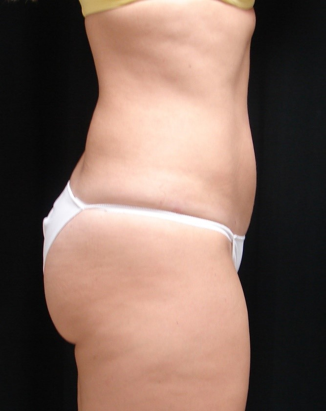 Liposuction-Body-Plastic-Surgery-Virginia-Beach-VA-004-D