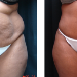 Top Benefits Of A Drainless Tummy Tuck Over A Traditional Tummy Tuck