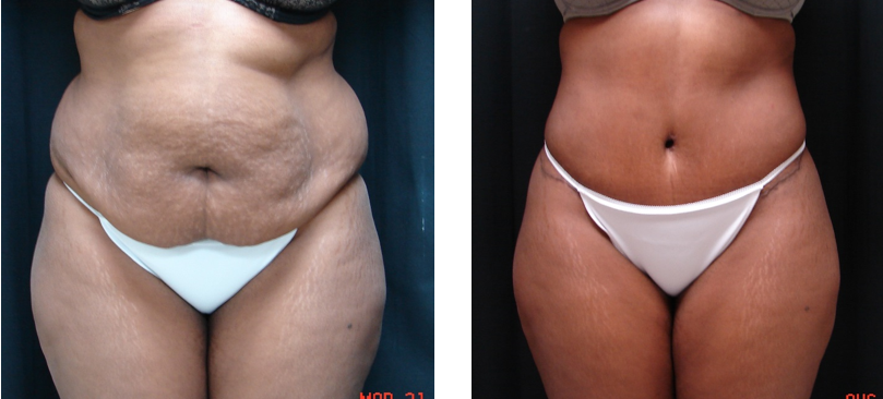 Abdominoplasty-Tummy-Tuck-Before-After-Dr-Alspaugh-Virginia-Beach-VA