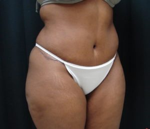 Abdominoplasty-Tummy-Tuck-Dr-Alspaugh-Virginia-Beach-VA-2