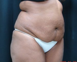 Abdominoplasty-Tummy-Tuck-Dr-Alspaugh-Virginia-Beach-VA-1