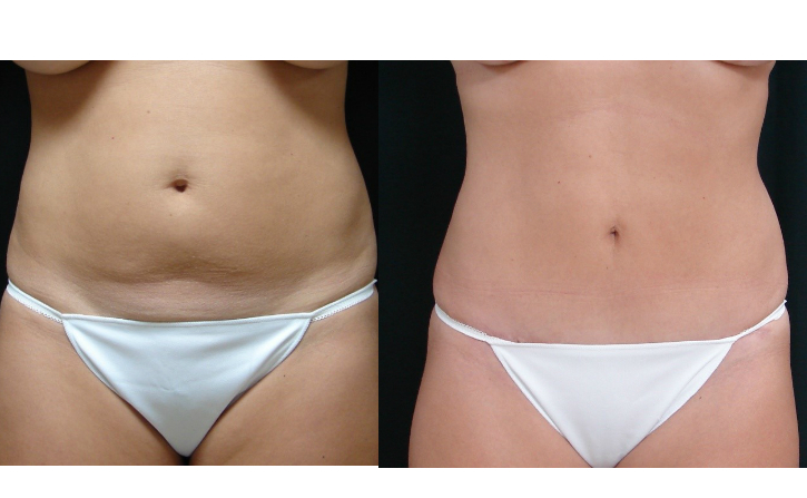 Abdominoplasty And Liposuction Associates In Plastic Surgery