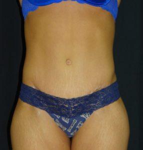 Post-Op-Abdominoplasty-Tummy-Tuck-Virginia-Beach-VA2